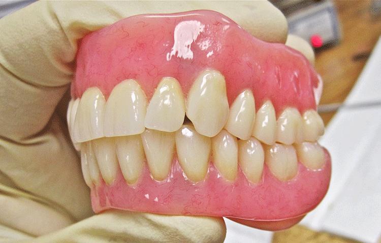 子供の顎の成長を利用する床矯正