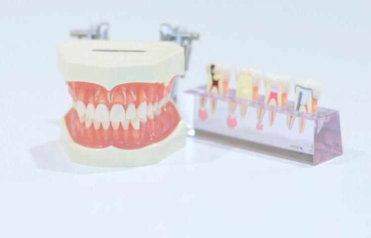 放置しておくと歯の神経を抜き取る羽目になる可能性も・・・